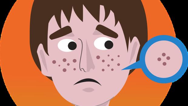 Acne, Face, Facial, Young, Person, Dermatology