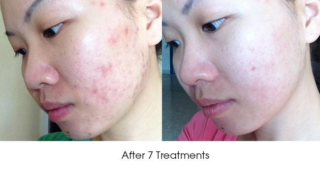 https://www.cambridgetherapeutics.com.sg/resources/ck/images/Before-After-Acne-calvy4.jpg